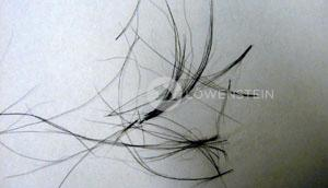 Abb. 3: Sebadenitis: verklebte Haarbüschel
