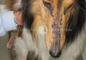 Abb. 1: Dermatomyositis im Gesicht