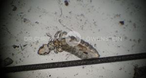 Abb. 6: Gliricola porcelli, Haarling beim Meerschweinchen